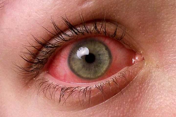 Doente do Olhos