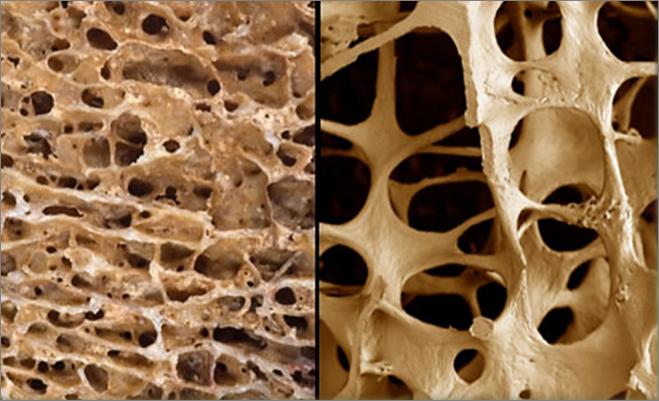 Como cuidar da saúde dos ossos